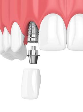 Animation of implant supported dental restoration