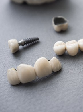 A series of implant-retained restorations.