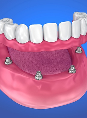 Model of All-On-4 dental implants.
