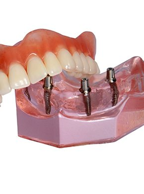 Dental model of implant-supported dentures.